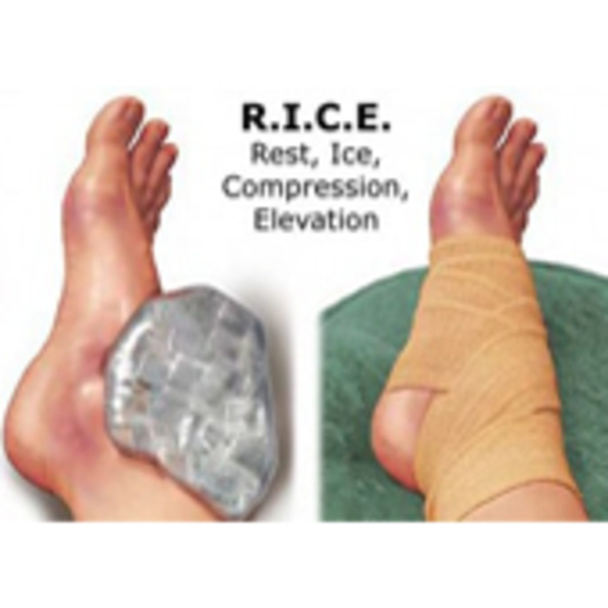 Rice feet
